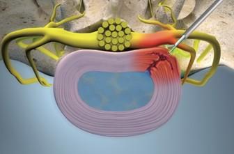 EuroPainClinics Study V - Endoscopic discectomy